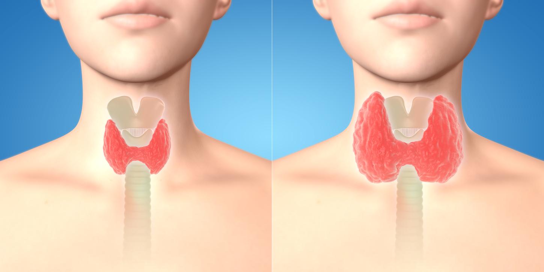 """Résultat de recherche d'images pour """"différence entre hyperthyroidie et hypothyroidie"""""""