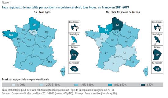 L'AVC reste la principale cause de mortalité chez les Françaises