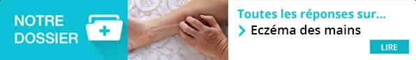 https://www.pourquoidocteur.fr/MaladiesPkoidoc/549-Eczema-des-mains-le-contact-avec-l-allergene-doit-etre-evite