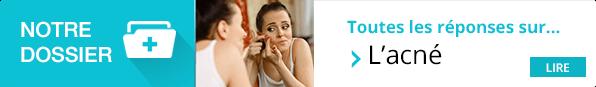 https://www.pourquoidocteur.fr/MaladiesPkoidoc/739-Acne-des-lesions-de-la-peau-a-bien-traiter-pour-eviter-les-cicatrices