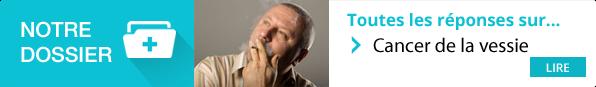 https://www.pourquoidocteur.fr/MaladiesPkoidoc/1085-Cancer-de-la-vessie-tabac-et-exposition-professionnelle-sont-en-cause
