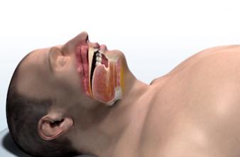 Apnée du sommeil : les Etats-Unis autorisent un implant révolutionnaire