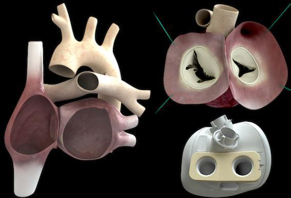 Coeur Carmat : 1ères données cliniques sur les implantations et les décès
