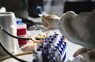 Un étudiant de 16 ans fait avancer la recherche sur le cancer