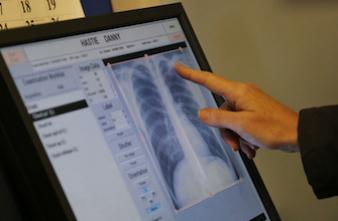 Cancer du poumon : vers un dépistage grâce à l'haleine
