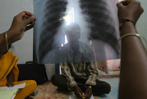 Tuberculoses multirésistantes : 98 % de laissés pour compte