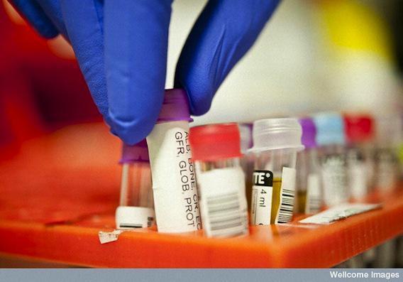 Un simple test sanguin pour diagnostiquer plus de maladies
