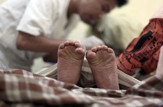 Sida : la circoncision pourrait réduire l'épidémie de 25%