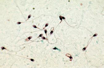 Infertilité masculine : des produits chimiques mis en accusation