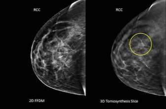 Cancer du sein : la chirurgie conservatrice expose à une récidive dans 1 cas sur 4