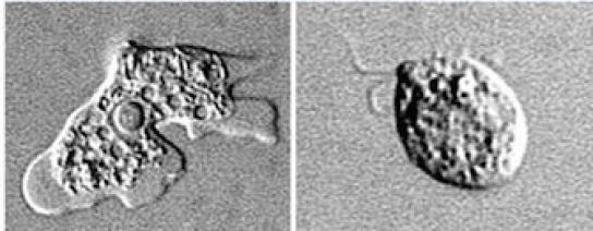 Inquiétude autour d'une amibe mortelle qui ronge le cerveau