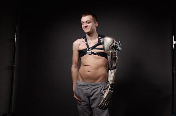 Handicap : un Anglais reçoit une prothèse inspirée d'un jeu vidéo