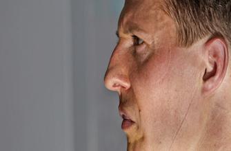 Schumacher : pourquoi les médecins ne peuvent pas se prononcer