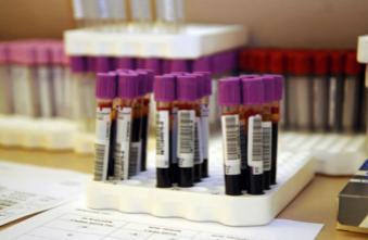 Un seul test sanguin pour dépister 13 types de cancer