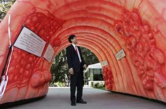 Cancer colorectal : les jeunes de plus en plus touchés