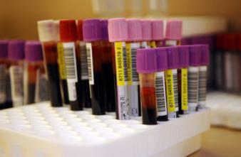 Dépister un cancer du poumon avec une prise de sang