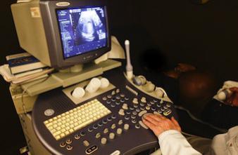 Erreur d'implantation d'embryons : qui a la garde des jumeaux ?
