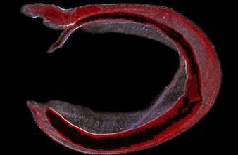 Bilharziose : un parasite vieux de 6200 ans découvert en Syrie