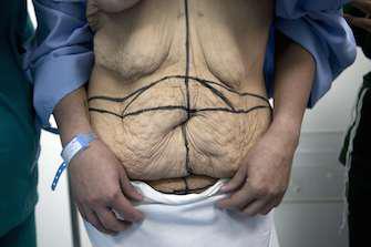 Chirurgie bariatrique : la chirurgie plastique booste son efficacité