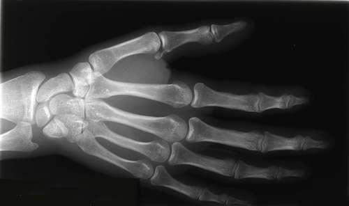 Pour une interdiction des tests d'âge osseux