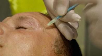 Botox : un traitement efficace dans le cancer de l'estomac