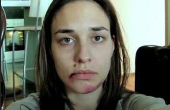 Violences faites aux femmes : il y a urgence à former les médecins