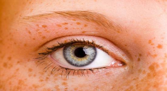 Myopie: porter des lentilles la nuit pour voir le jour