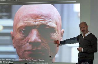 Robespierre : diagnostic de variole et sarcoïdose 219 ans après sa mort
