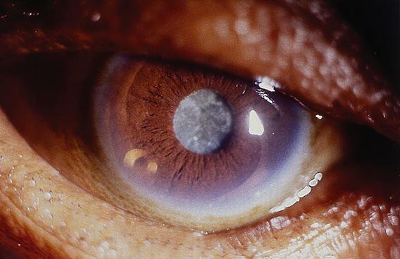 Cataracte : la vitamine C aurait un effet préventif