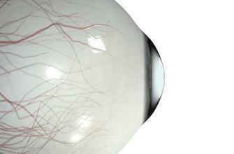 Rétine artificielle: des aveugles déchiffrent des lettres
