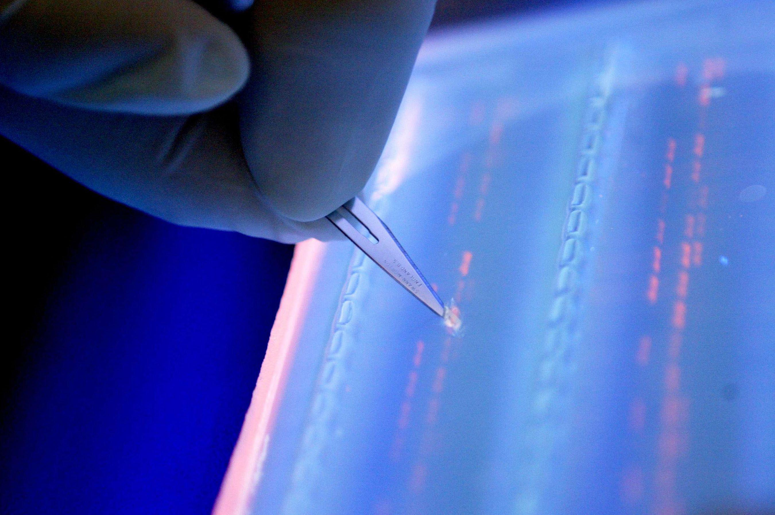 Maladie d'Alzheimer : 11 nouveaux gènes identifiés