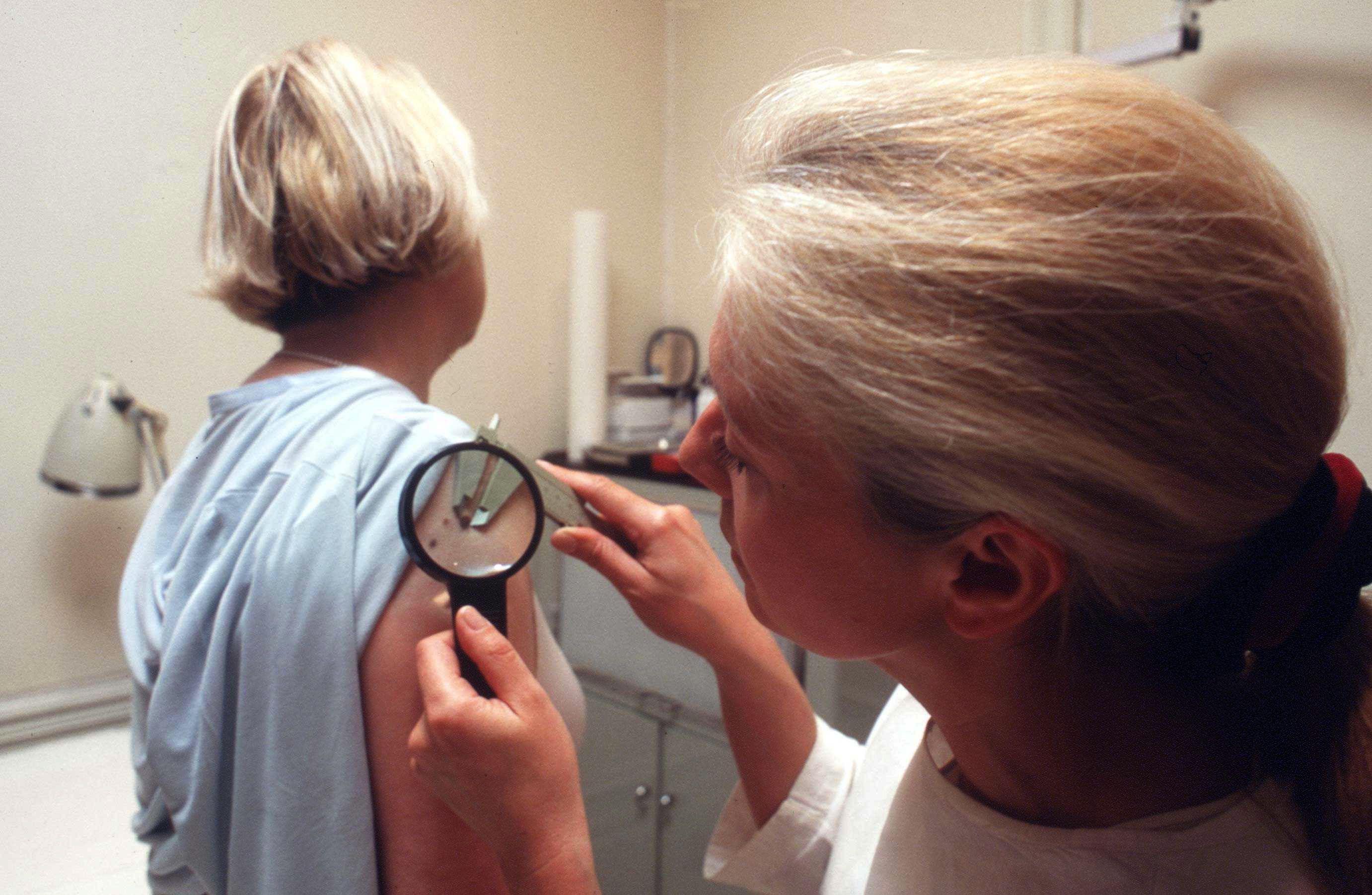 L'eczéma pourrait réduire le risque de cancer de la peau