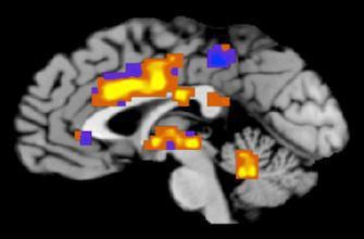 Alzheimer : réveiller les souvenirs avec la stimulation électrique