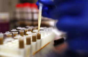 Marseille : le Clostridium difficile a un fort potentiel pandémique