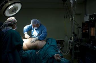 La chirurgie de l'obésité fait fondre les kilos mais aussi les os