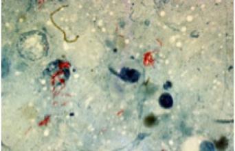 Tuberculose : aux origines des souches multi-résistantes