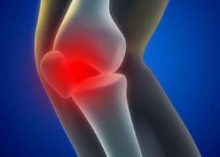 Arthrose : colère après le déremboursement de 5 médicaments