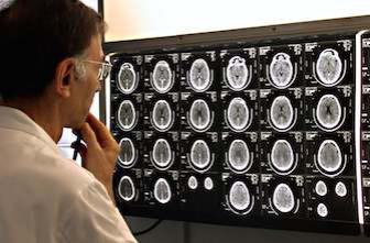 Dépression : la piste de l'inflammation cérébrale se confirme