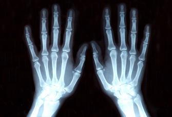 L'expulsion d'un collégien malien relance le débat sur les tests osseux
