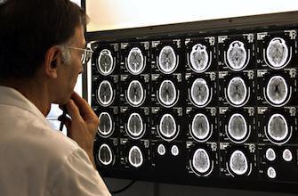 Les lésions cérébrales triplent le risque de décès prématuré