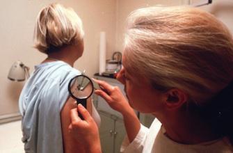 Feu vert pour un médicament dans le cancer de la peau