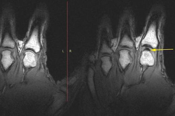 Le mystère des craquements de doigts résolus grâce à l'IRM