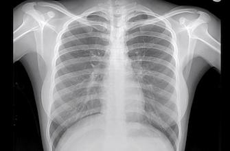 Imagerie : la pénurie de technétium va pénaliser des milliers de patients