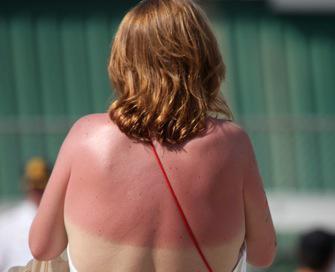 L'excès d'alcool augmente le risque de cancer de la peau