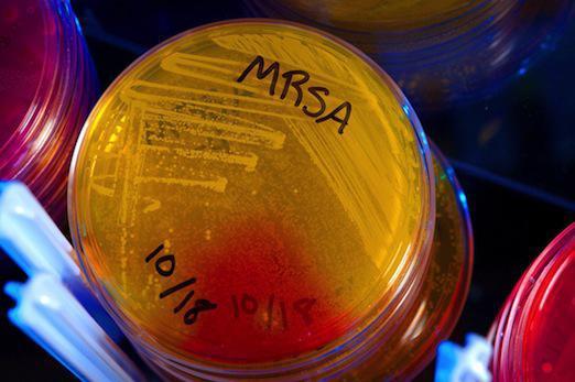 Bactéries multirésistantes: un logiciel pour anticiper sur leurs mutations
