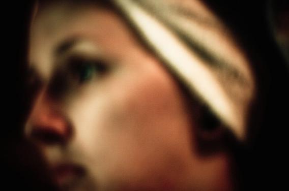 Traitement de l'acné : les médecins abusent des antibiotiques