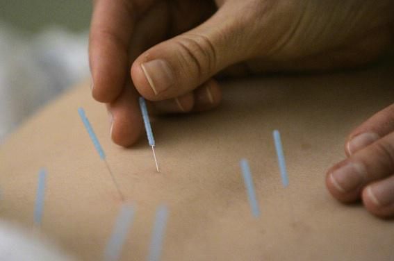Cancer du sein : l'acupuncture réduit les bouffées de chaleur