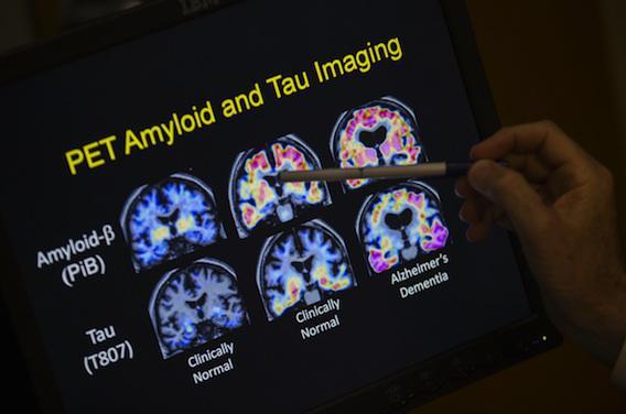 Alzheimer : les plaques amyloïdes altèrent la mémorisation