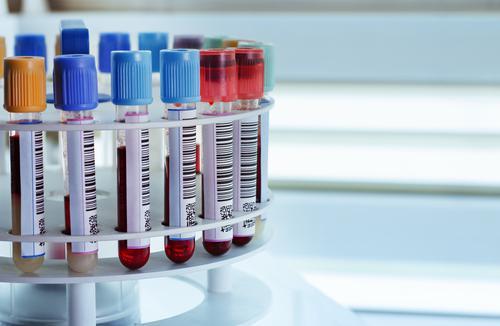 Vieillissement : un test sanguin pour prédire l'état de santé