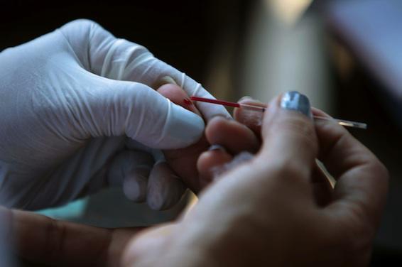 Autotest VIH : le malaise des pharmaciens